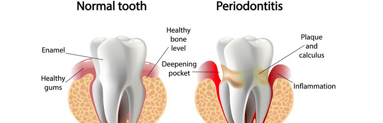 periodontal-gum-desease