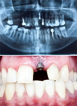 dental_implant_content_img