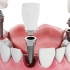 Give Your Teeth a Second Chance with Dental Implant