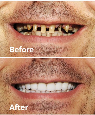 Before After Cosmetic Dentistry