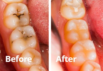 Before After Dental Fillings