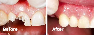 Before After White Fillings